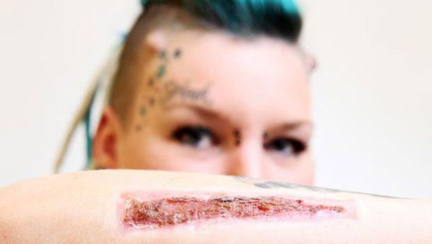 Namorada_remove_tatuagem_bisturi