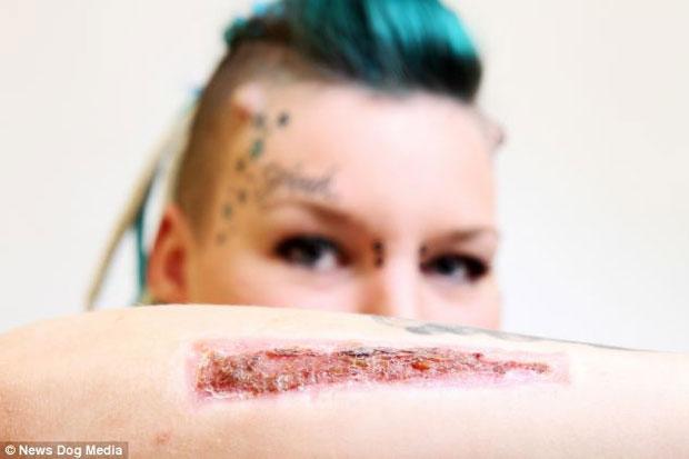 Com raiva do ex, namorada remove tatuagem em homenagem a ele