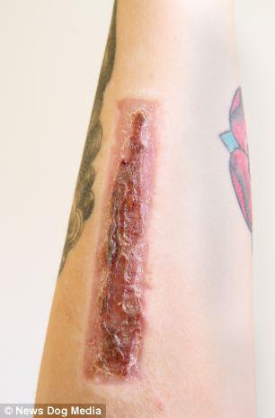 Namorada_remove_tatuagem_bisturi_2